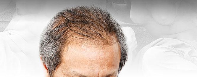 Saç Dökülme Tedavisi
